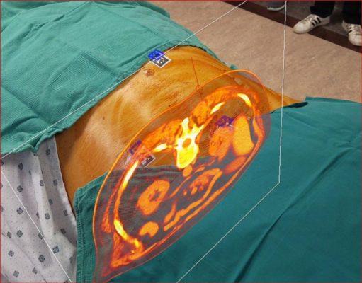 借助增强现实进行医学成像使临床医生能够观察和查看患者身体透视图,从而能够制定更棒的手术计划、实现更好的成果。(来源: Novarad)