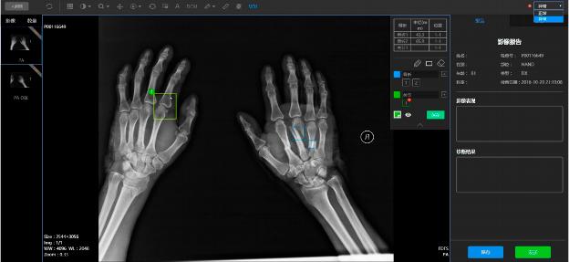 手部 X 射线影像,显示骨折位置